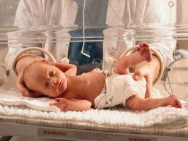 Las diferencias entre el bajo peso y el parto prematuro Los bebés