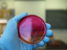 Pruebas de identificación de bacterias
