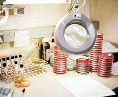 Técnicas de placas de hacinamiento en Microbiología